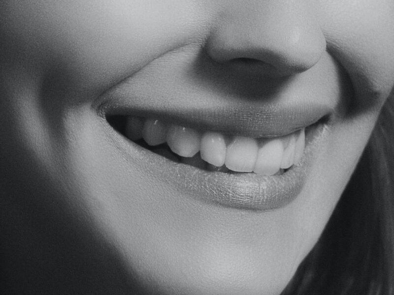 Denti sporgenti: ecco come ho risolto il mio problema e sono tornato a sorridere